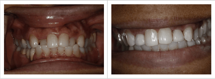 before and after photo of patient, andrea's, misaligned teeth