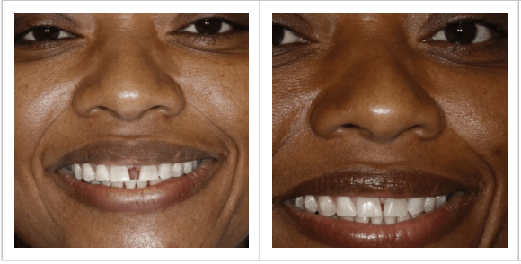 patient Joan of her before/after gapped teeth