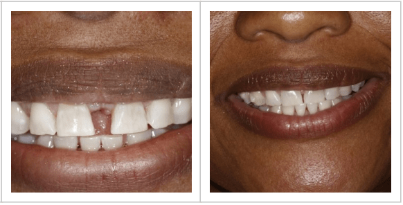 closeup of patient Joan before/after photos of her gapped teeth