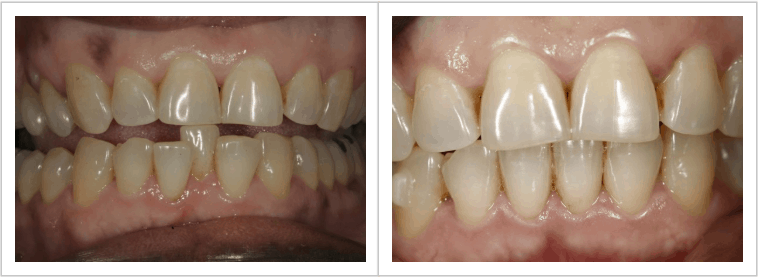 before and after photos of patient, marjorie's, misaligned teeth
