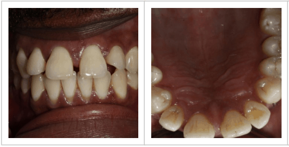 photo of patient, Nicholas' front teeth and upper palate